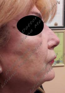 Dopo il trattamento Rinofiller Dott.sa Mentesana