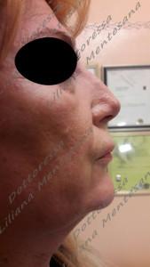 Prima del trattamento Rinofiller Dott.sa Mentesana