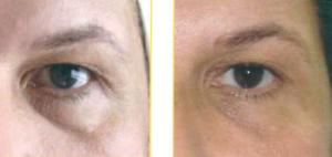 carbossiterapia contorno occhi_2